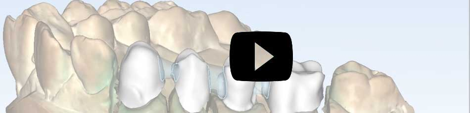 ortho studio video en youtube